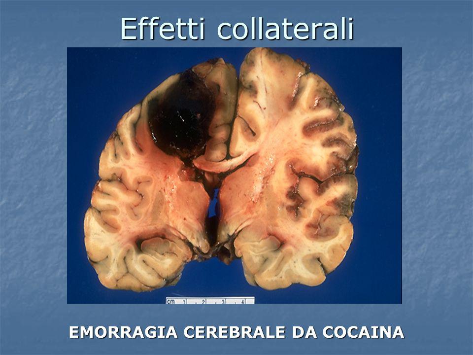 Effetti collaterali EMORRAGIA CEREBRALE DA COCAINA