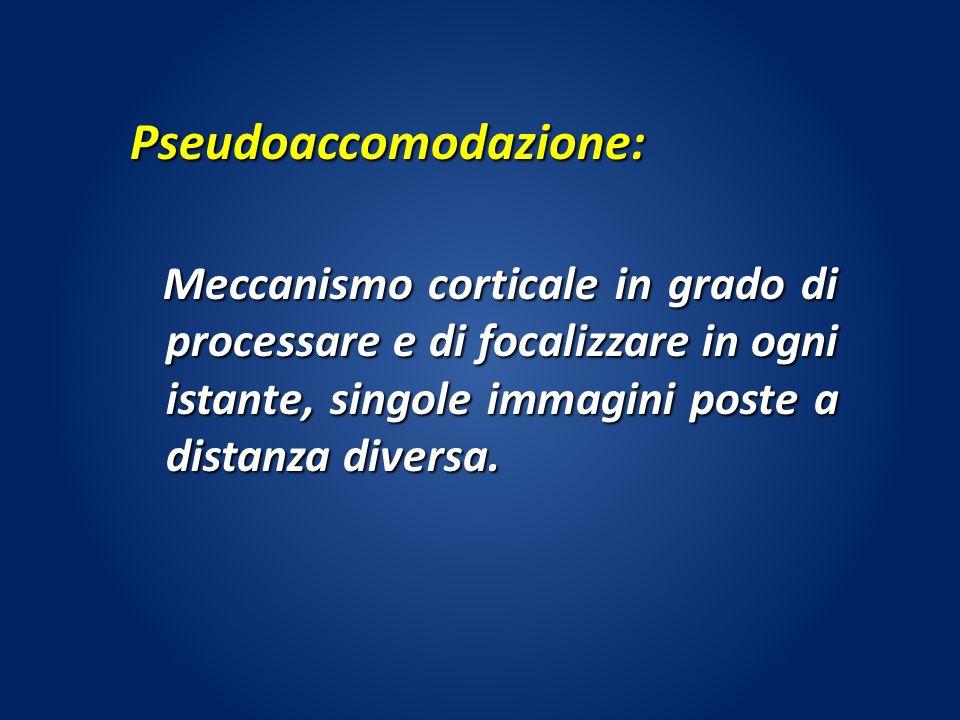 Pseudoaccomodazione: Meccanismo corticale in grado di processare e di focalizzare in ogni istante, singole immagini poste a distanza diversa. Meccanis