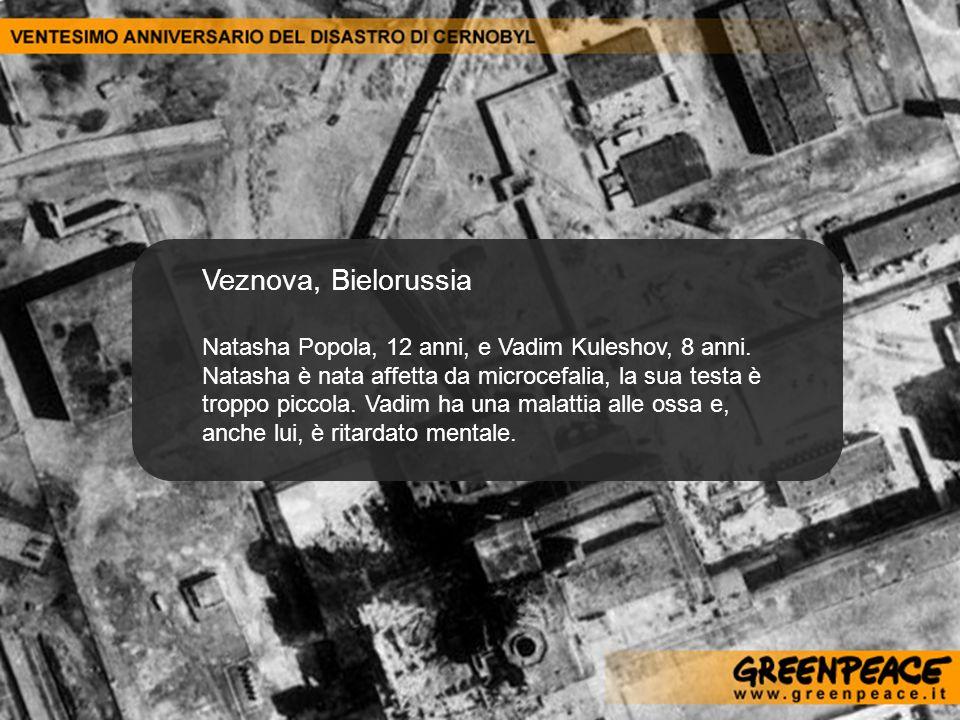 Veznova, Bielorussia Natasha Popola, 12 anni, e Vadim Kuleshov, 8 anni. Natasha è nata affetta da microcefalia, la sua testa è troppo piccola. Vadim h