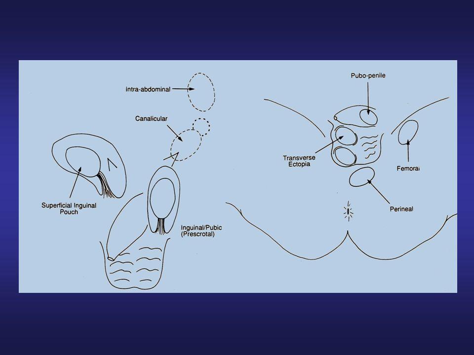Le alterazioni a carattere degenerativo delle cellule germinali sono evidenti già alla fine del secondo anno di vita.