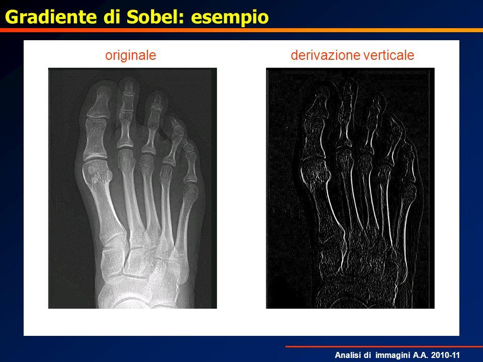 Analisi di immagini A.A. 2010-11 Gradiente di Sobel: esempio derivazione verticaleoriginale