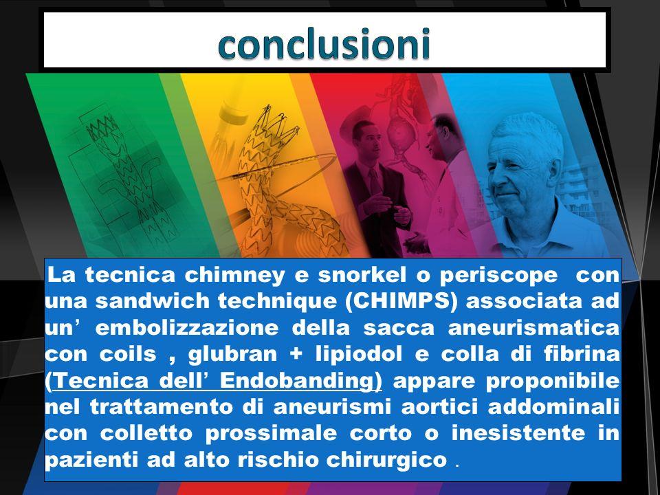 La tecnica chimney e snorkel o periscope con una sandwich technique (CHIMPS) associata ad un embolizzazione della sacca aneurismatica con coils, glubr