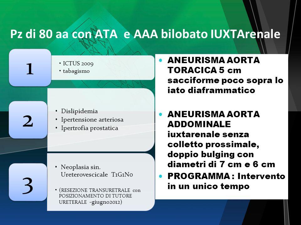 Pz di 80 aa con ATA e AAA bilobato IUXTArenale ICTUS 2009 tabagismo 1 Dislipidemia Ipertensione arteriosa Ipertrofia prostatica 2 Neoplasia sin. Urete