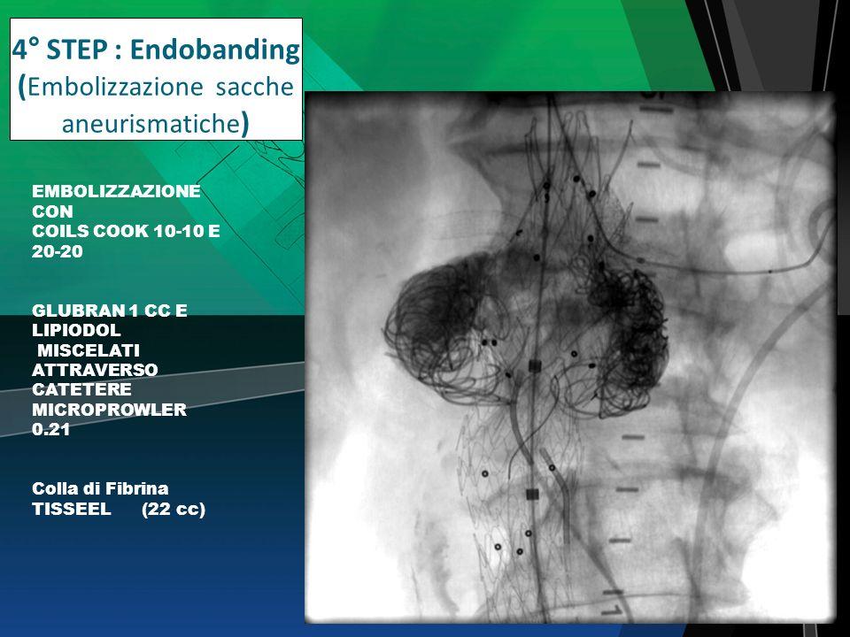 4° STEP : Endobanding ( Embolizzazione sacche aneurismatiche ) EMBOLIZZAZIONE CON COILS COOK 10-10 E 20-20 GLUBRAN 1 CC E LIPIODOL MISCELATI ATTRAVERS