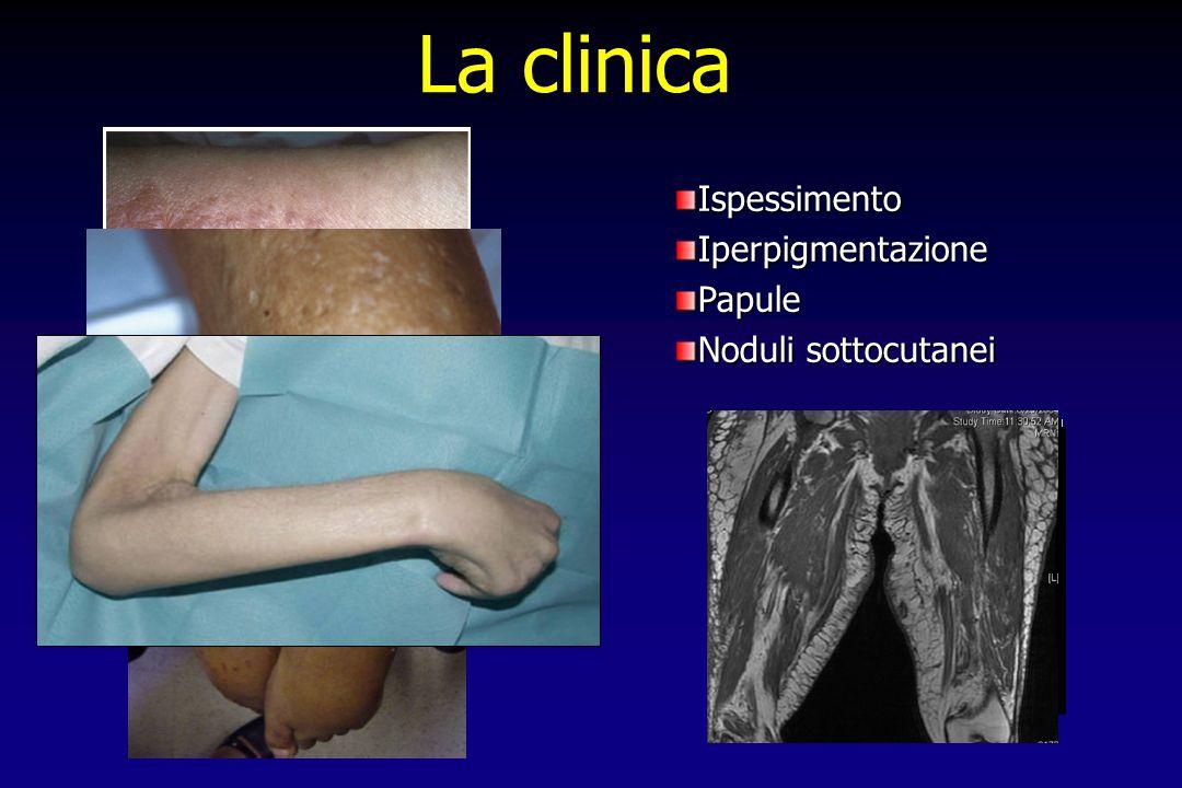 IspessimentoIperpigmentazionePapule Noduli sottocutanei La clinica