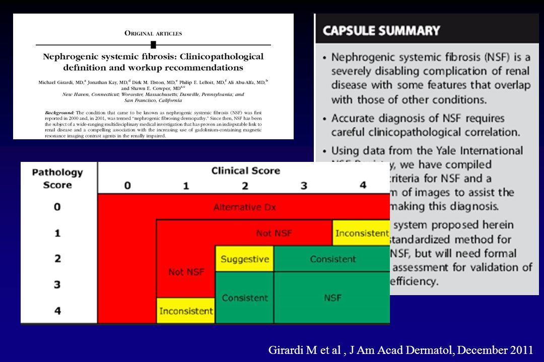 In pazienti con eGFR < 15 lemodialisi è associata ad una significativa riduzione di NSF Nessun paziente sottoposto a emodialisi nel medesimo giorno dellesposizione al Gd ha sviluppato NSF Lincidenza di NSF in pazienti che hanno ricevuto una dose standard (0.1 mmol/Kg) è 0 su 74,124 pazienti (86% Gadodiamide) Lincidenza è stata inferiore in pazienti trattati con dose singola ripetuta (0 in 5725) piuttosto che in quelli sottoposti a singola dose elevata (9 in 5119) Epidemiologia