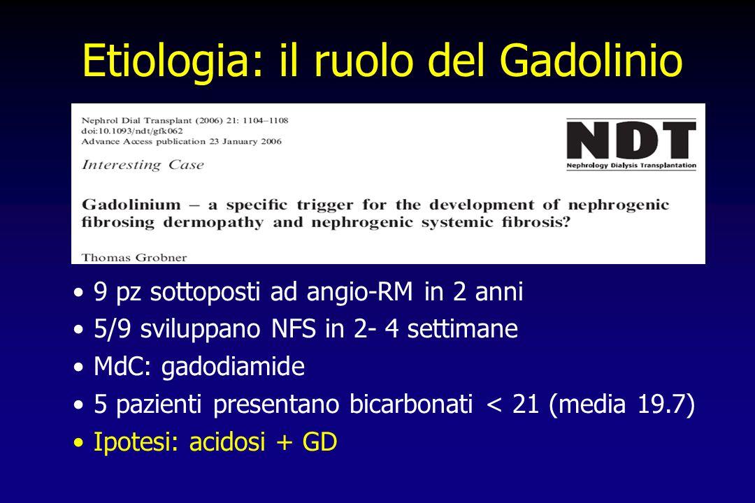 9 pz sottoposti ad angio-RM in 2 anni 5/9 sviluppano NFS in 2- 4 settimane MdC: gadodiamide 5 pazienti presentano bicarbonati < 21 (media 19.7) Ipotes