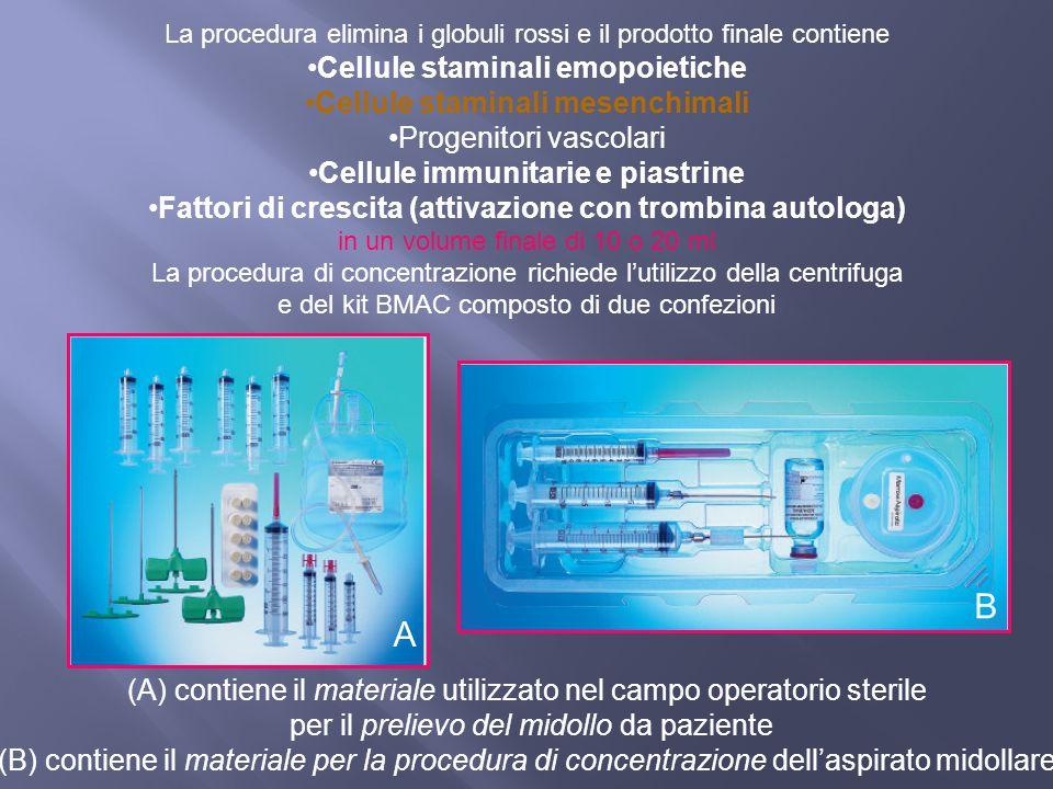 La procedura elimina i globuli rossi e il prodotto finale contiene Cellule staminali emopoietiche Cellule staminali mesenchimali Progenitori vascolari