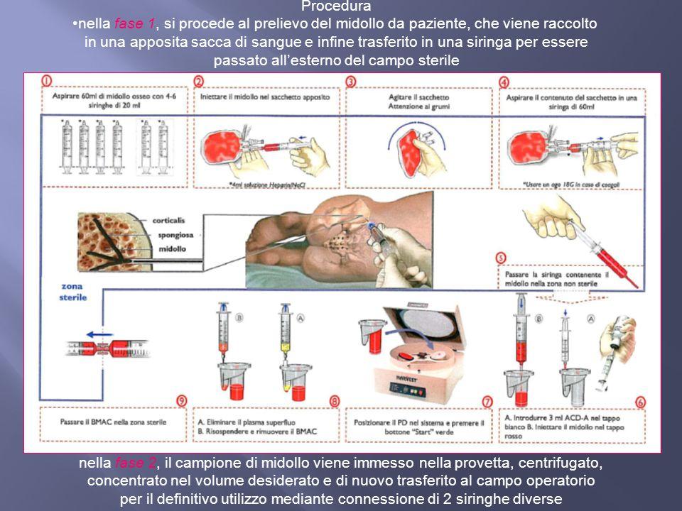 Procedura nella fase 1, si procede al prelievo del midollo da paziente, che viene raccolto in una apposita sacca di sangue e infine trasferito in una