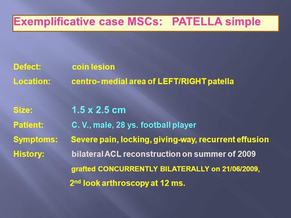 Exemplificative case MSCs: PATELLA simple Defect: coin lesion Location: centro- medial area of LEFT/RIGHT patella Size: 1.5 x 2.5 cm Patient: C. V., m