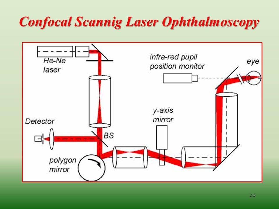 Confocal Scannig Laser Ophthalmoscopy 20