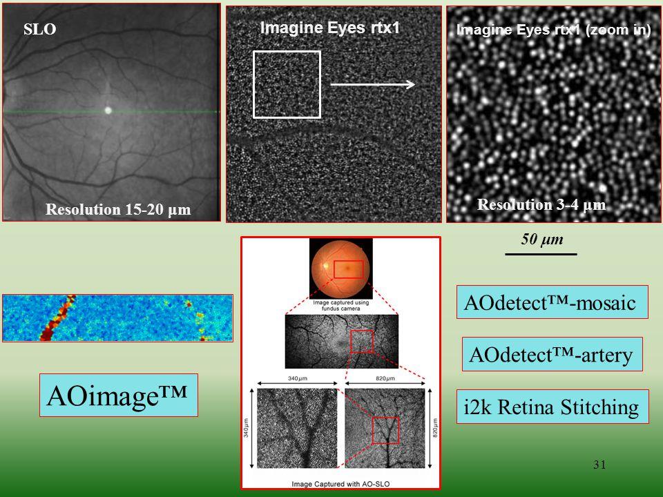 31 Resolution 15-20 μm Imagine Eyes rtx1 Imagine Eyes rtx1 (zoom in) Resolution 3-4 μm 50 μm AOdetect™-mosaic AOdetect™-artery i2k Retina Stitching AO