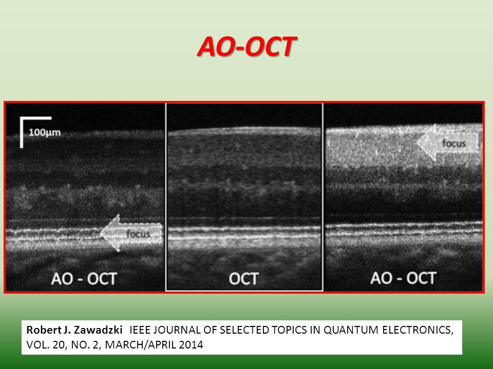AO-OCT 36 Robert J. Zawadzki IEEE JOURNAL OF SELECTED TOPICS IN QUANTUM ELECTRONICS, VOL. 20, NO. 2, MARCH/APRIL 2014
