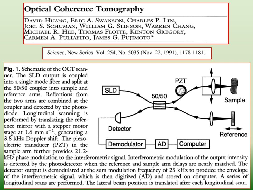 38 Optical Coherence Microscopy (OCM) combines the coherent detection methods of OCT with confocal microscopy.
