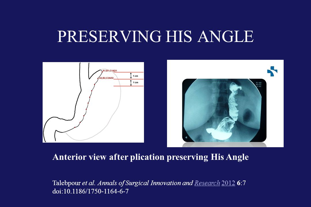 PRESERVING HIS ANGLE Anterior view after plication preserving His Angle Talebpour et al. Annals of Surgical Innovation and Research 2012 6:7 doi:10.11