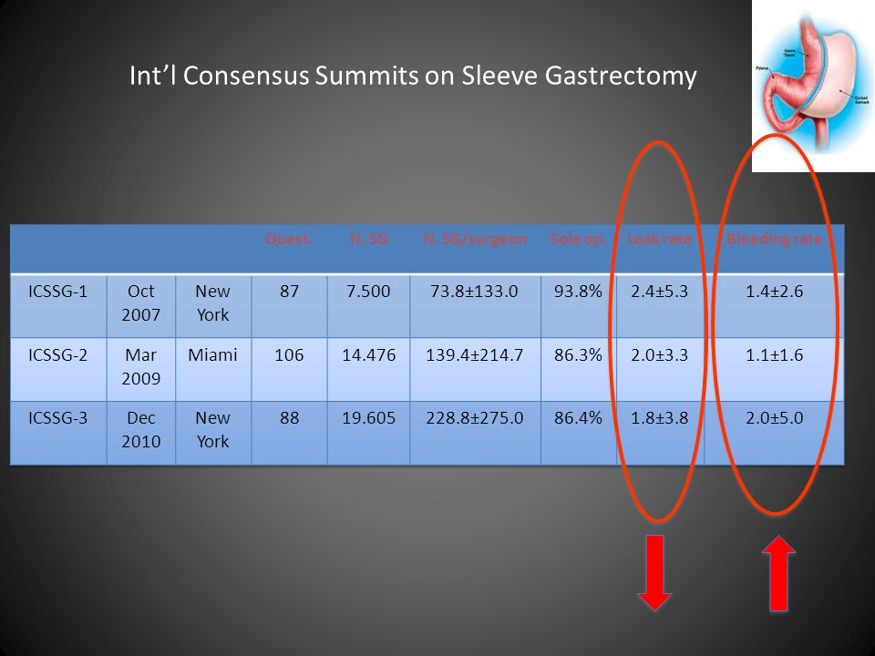 Int'l Consensus Summits on Sleeve Gastrectomy