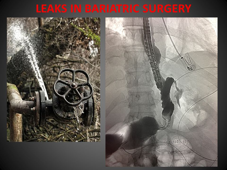 LEAKS PREVENTION APPROPRIATE SURGICAL TECHNIQUE STAPLE LINE REINFORCEMENT (?) suture buttress material sealants MET BLUE TESTING NG TUBE (?) DIAGNOSIS ENDOSCOPY WITH FLUOROSCOPY CT SCAN TREATMENT CONSERVATIVE Drainage TPN STENTING Endoscopic clipping or sealants (?)