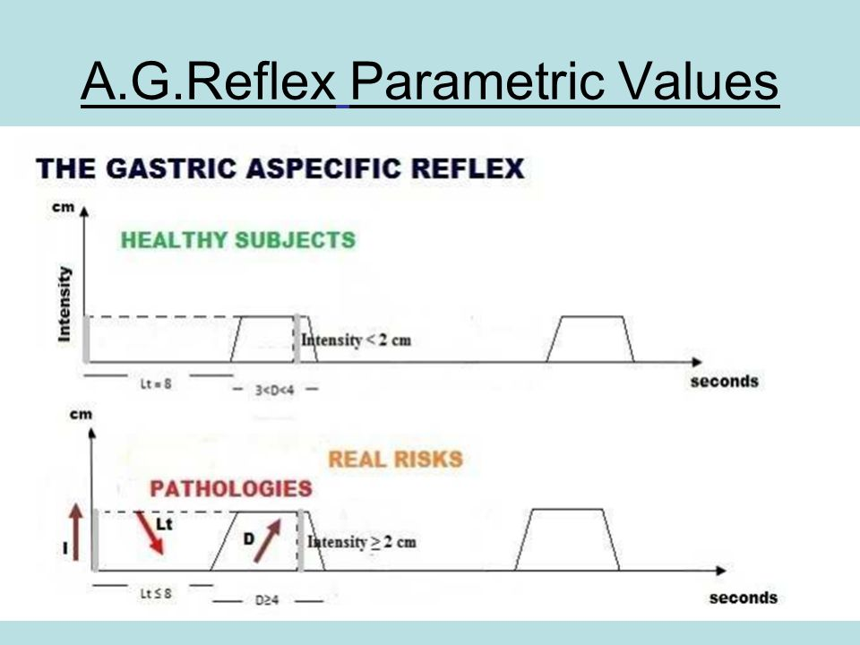 A.G.Reflex Parametric Values