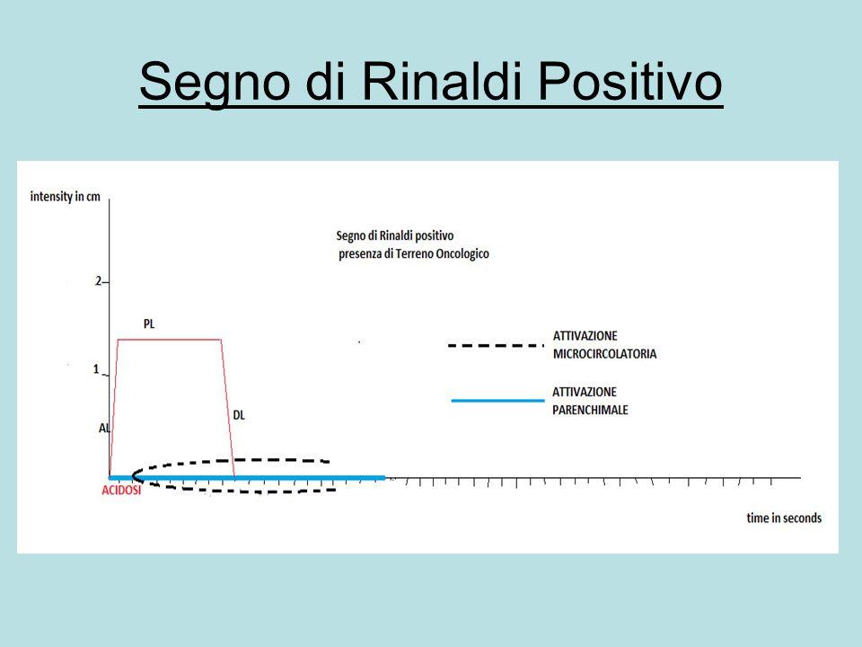 Segno di Rinaldi Positivo