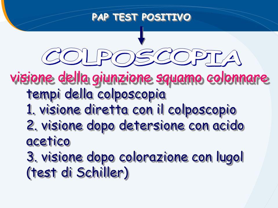 PAP TEST POSITIVO visione della giunzione squamo colonnare tempi della colposcopia 1. visione diretta con il colposcopio 2. visione dopo detersione co
