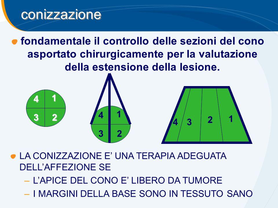 fondamentale il controllo delle sezioni del cono asportato chirurgicamente per la valutazione della estensione della lesione. 1 23 4 1 23 4 1 2 34 con