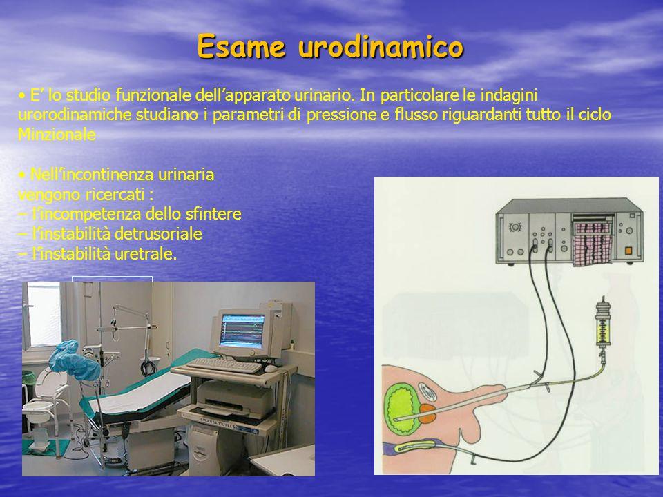 Uroflussimetria E' la misurazione del flusso urinario inteso come volume urinario in millimetri emesso attraverso l'uretra all'esterno nell'unità di tempo calcolato in secondi I pazienti vengono invitati ad urinare in unflussometro, posto sotto una comoda all'interno della quale vi è un imbuto che convoglia l'urina in un raccoglitore graduato adagiato sul piatto di un trasduttore