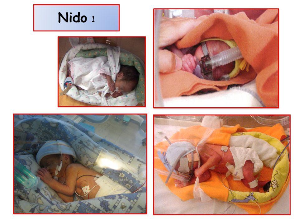 Nido 1