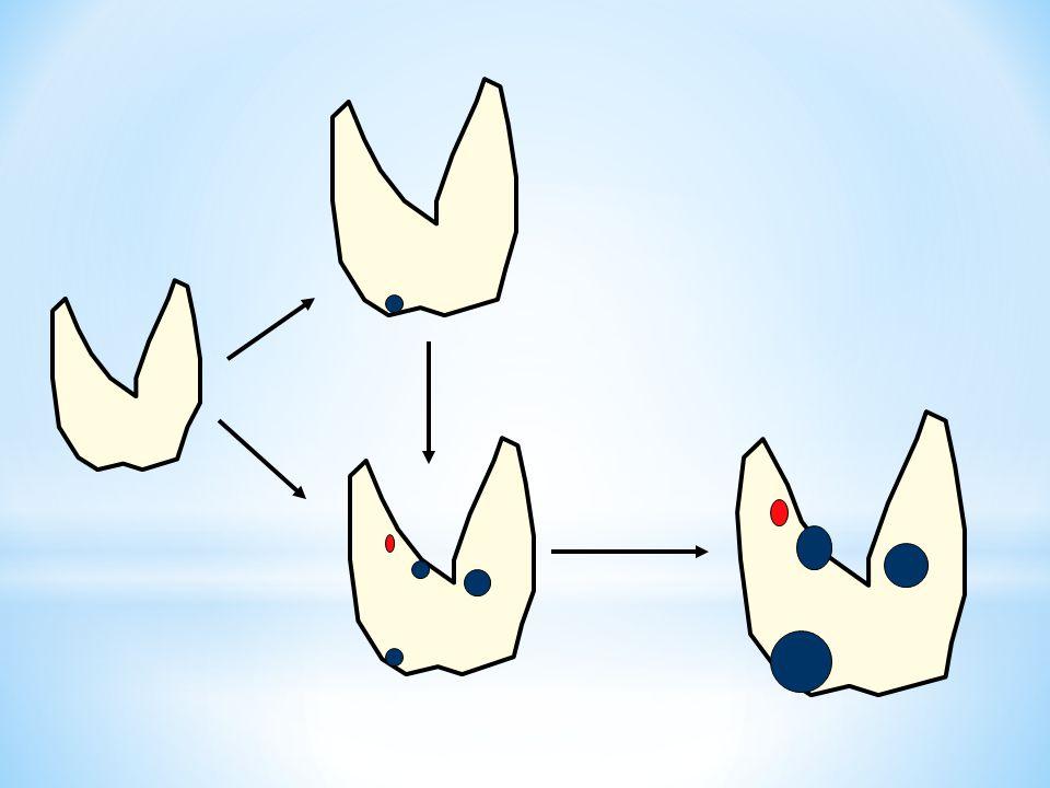 INDICAZIONE Noduli cistici Noduli complessi con maggiore componente fluida Recidiva dopo aspirazione Nodulo tossico <5 ml (elevate recidive) CONTROINDICATA Noduli solidi Nodulo tossico >5 ml G.