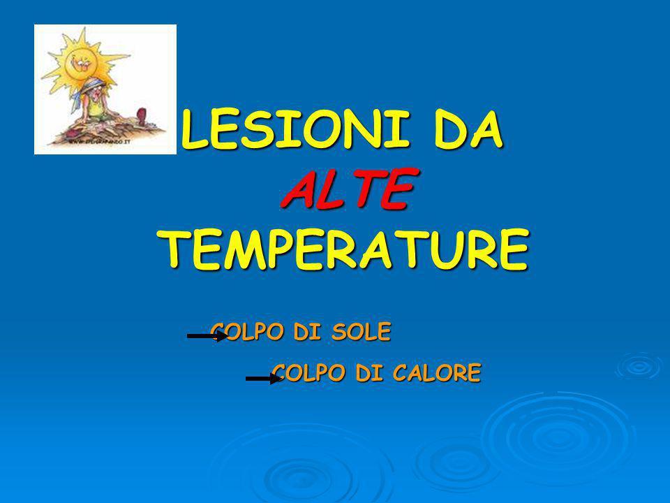 LESIONI DA ALTE TEMPERATURE COLPO DI SOLE COLPO DI CALORE COLPO DI CALORE