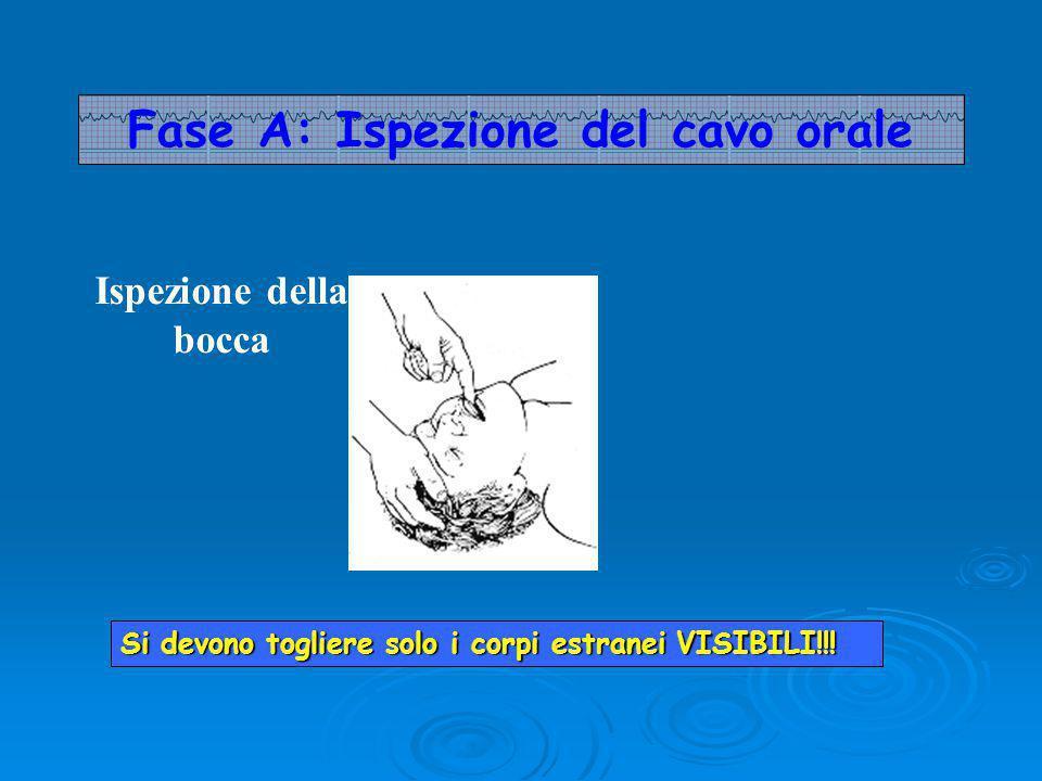 Fase A: Ispezione del cavo orale Ispezione della bocca Si devono togliere solo i corpi estranei VISIBILI!!!