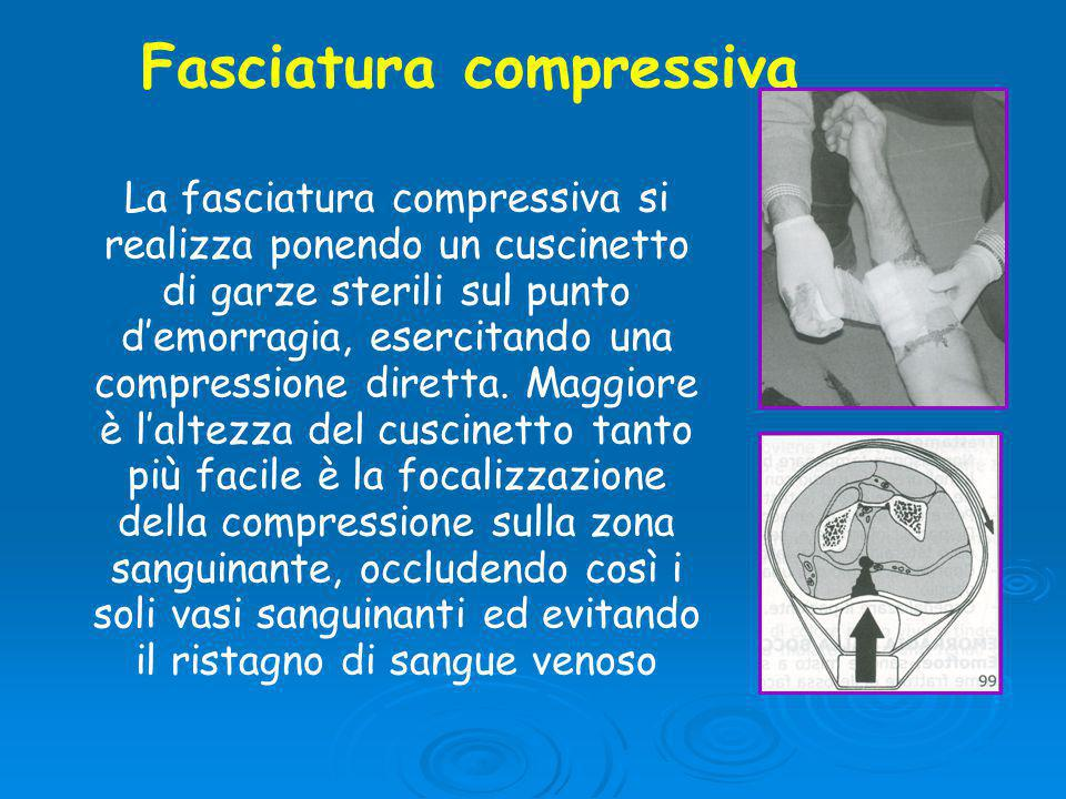 Fasciatura compressiva La fasciatura compressiva si realizza ponendo un cuscinetto di garze sterili sul punto d'emorragia, esercitando una compressione diretta.