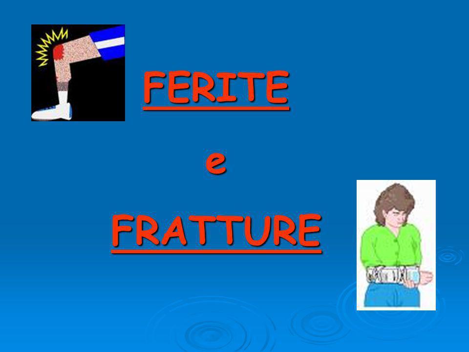 FERITEeFRATTURE