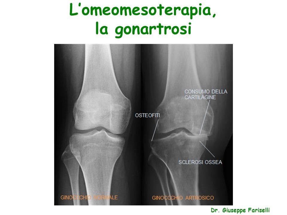 L'omeomesoterapia, la gonartrosi Dr. Giuseppe Fariselli