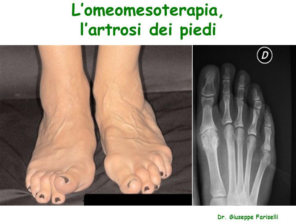 L'omeomesoterapia, l'artrosi dei piedi Dr. Giuseppe Fariselli