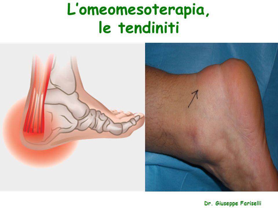 L'omeomesoterapia, le tendiniti Dr. Giuseppe Fariselli