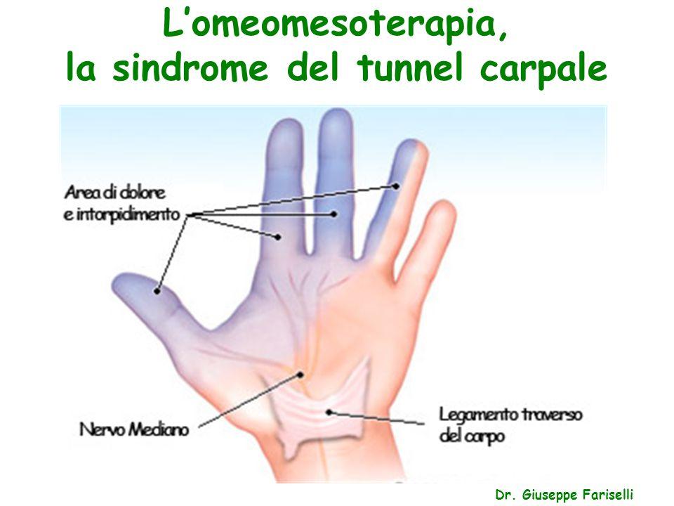 L'omeomesoterapia, la sindrome del tunnel carpale Dr. Giuseppe Fariselli