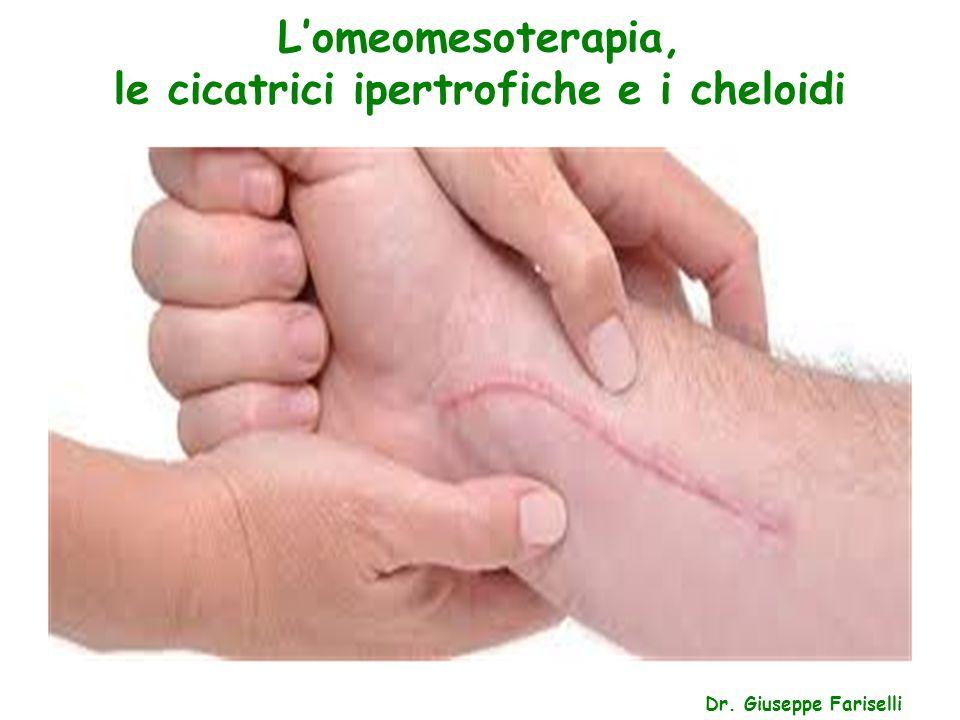L'omeomesoterapia, le cicatrici ipertrofiche e i cheloidi Dr. Giuseppe Fariselli