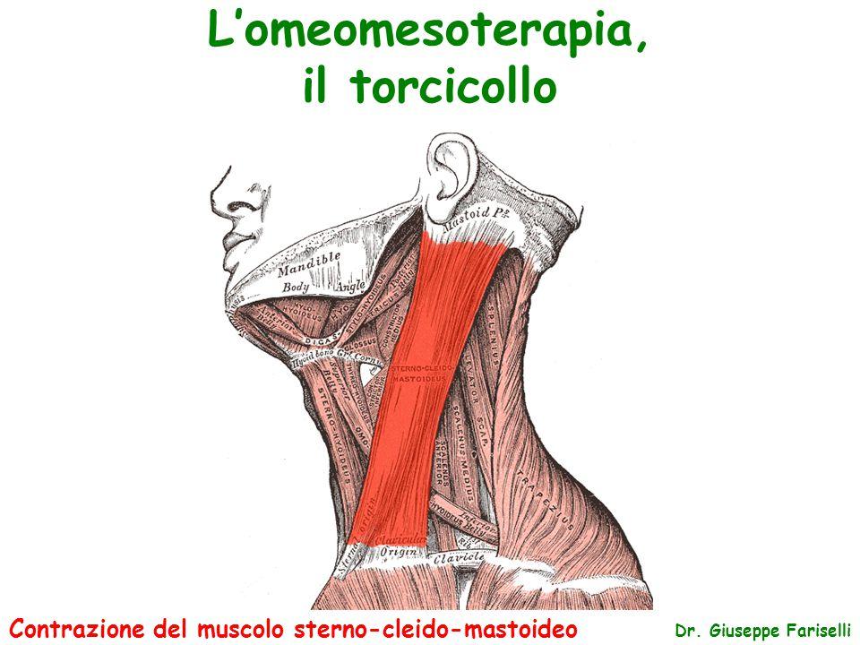 L'omeomesoterapia, il torcicollo Dr. Giuseppe Fariselli Contrazione del muscolo sterno-cleido-mastoideo