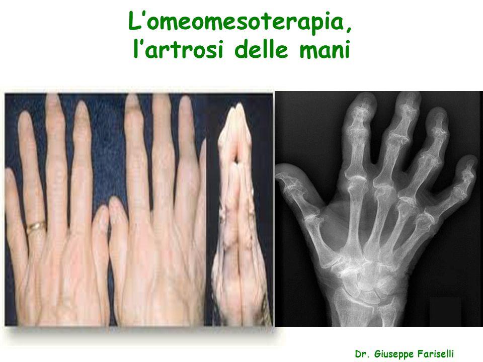 L'omeomesoterapia, l'artrosi delle mani Dr. Giuseppe Fariselli
