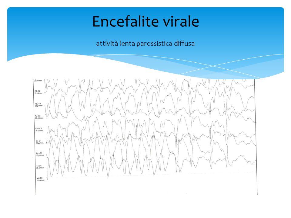 Encefalite virale attività lenta parossistica diffusa