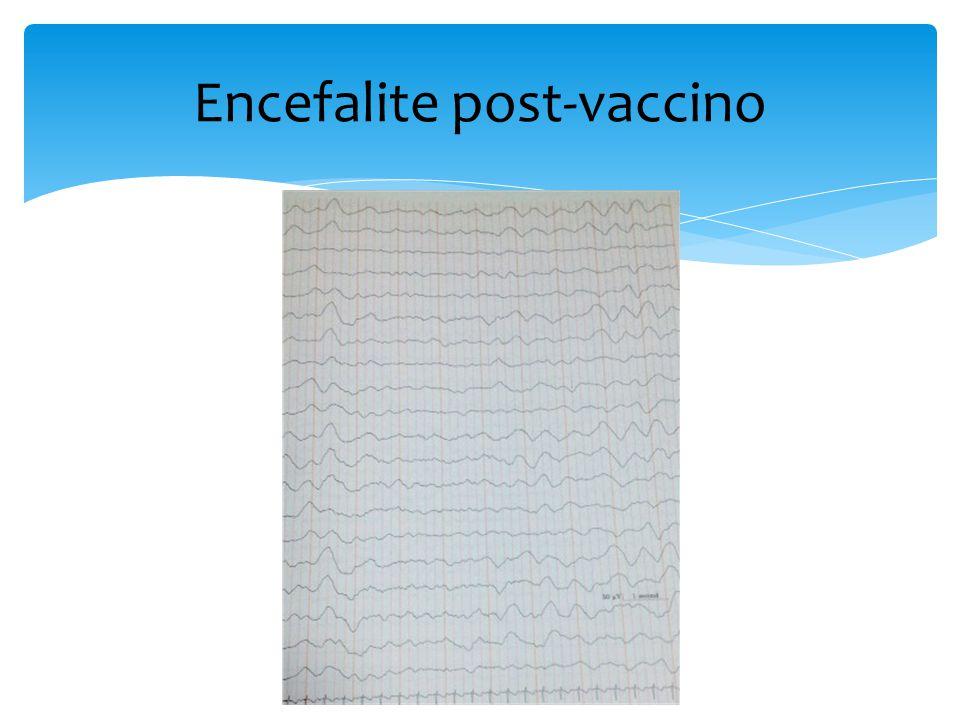 Encefalite post-vaccino