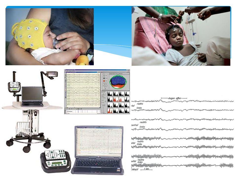 EEG nell'età infantile  Prematuro-neonato: attività di base discontinua legata all'ancora non completo sviluppo delle connessioni neuronali  Ritmo di base alfa occipitale 3-5 mesi 3.5-4.5 Hertz 12 mesi 5-6 Hertz 3 anni7.5-9.5 Hertz 9 anni>9 Hertz
