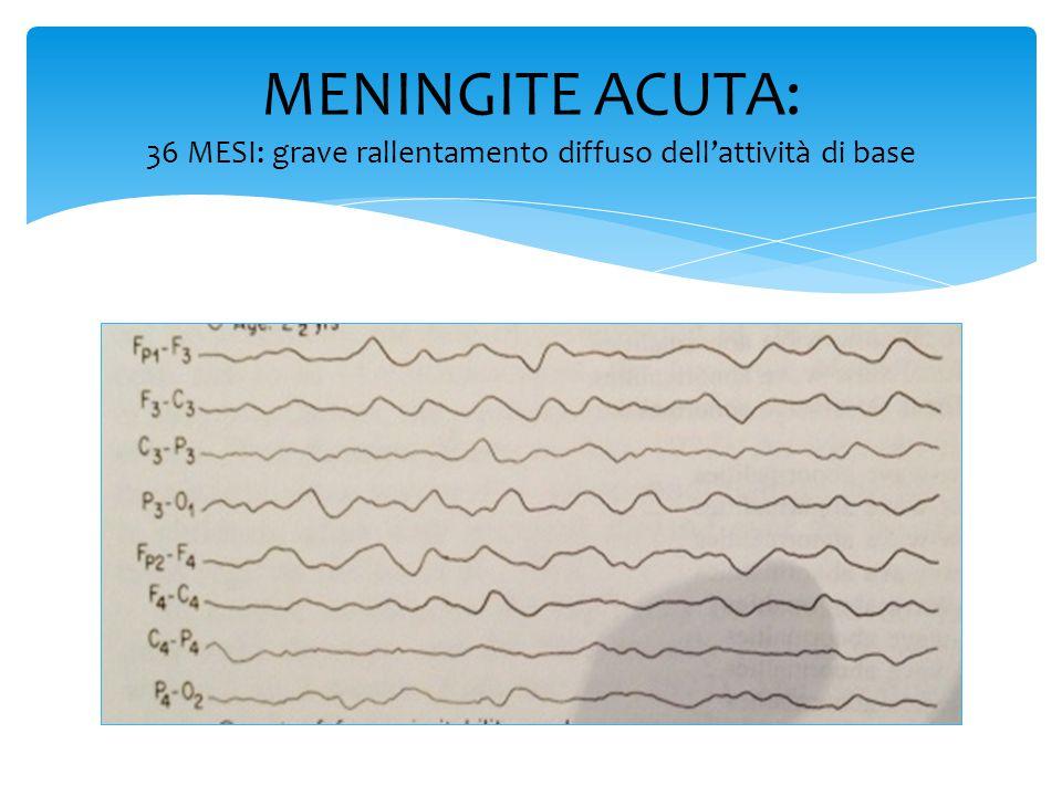  Attività di fondo disorganizzata  Attività delta polimorfa focale, con predominanza temporale  Complessi punta-onda (sharp o slow-wave) temporali  Comparsa di periodismo lungo  Coinvolgimento di un emisfero o di entrambi anche in modo asincrono  Silenzio elettrico nelle forme fatali Encefalite erpetica