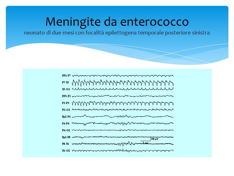 Meningite tubercolare il reperto EEG varia con la localizzazione del processo infiammatorio Meningite tubercolare basale: EEG normale o solo lievemente rallentato in modo aspecifico Meningite tubercolare corticale: rallentamenti dell'EEG da moderati a severi in relazione a: -Grado di coinvolgimento corticale -Grado di progressione del processo infettivo -Livello di coscienza -Presenza di complicanze metaboliche -Eventuali effetti dei farmaci
