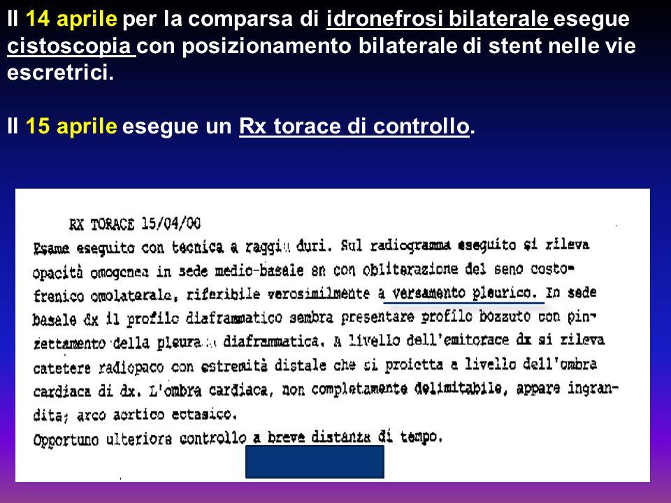 Il 14 aprile per la comparsa di idronefrosi bilaterale esegue cistoscopia con posizionamento bilaterale di stent nelle vie escretrici. Il 15 aprile es