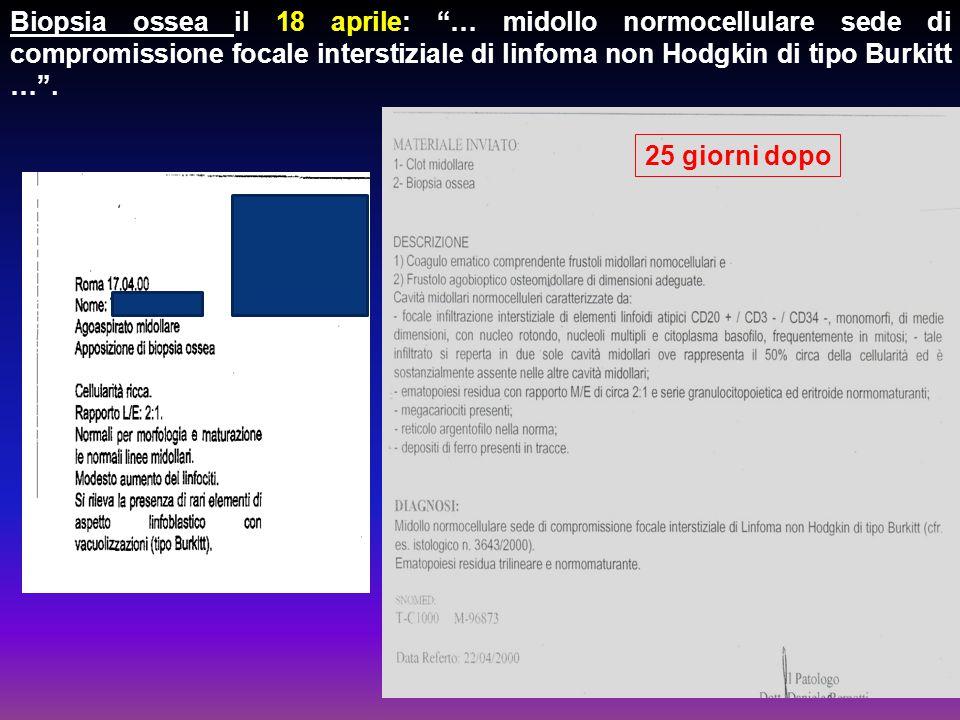 """Biopsia ossea il 18 aprile: """"… midollo normocellulare sede di compromissione focale interstiziale di linfoma non Hodgkin di tipo Burkitt …"""". 25 giorni"""