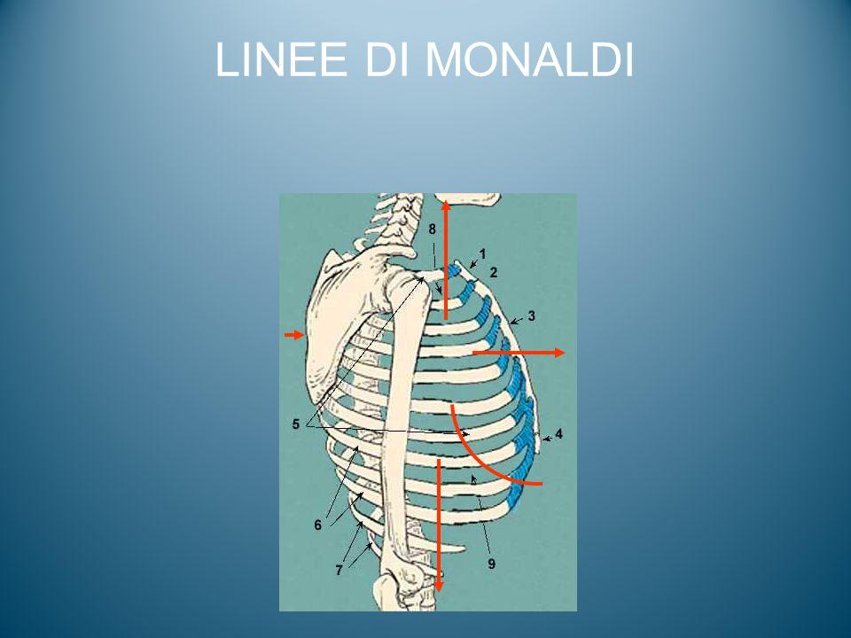 LINEE DI MONALDI