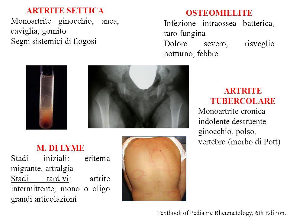 ARTRITE SETTICA Monoartrite ginocchio, anca, caviglia, gomito Segni sistemici di flogosi ARTRITE TUBERCOLARE Monoartrite cronica indolente destruente ginocchio, polso, vertebre (morbo di Pott) OSTEOMIELITE Infezione intraossea batterica, raro fungina Dolore severo, risveglio notturno, febbre Textbook of Pediatric Rheumatology, 6th Edition.