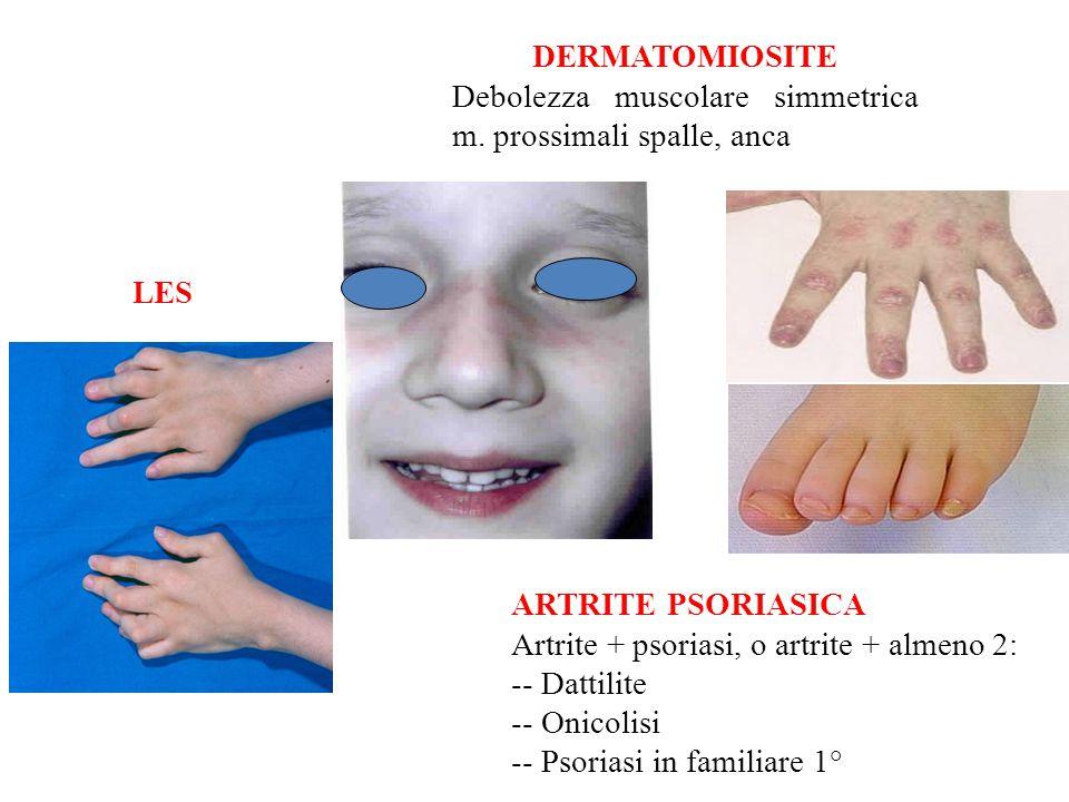 DERMATOMIOSITE Debolezza muscolare simmetrica m.