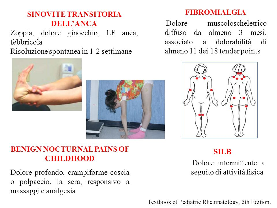 Textbook of Pediatric Rheumatology, 6th Edition. SINOVITE TRANSITORIA DELL'ANCA Zoppia, dolore ginocchio, LF anca, febbricola Risoluzione spontanea in